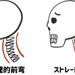 生理的前弯とストレートネック